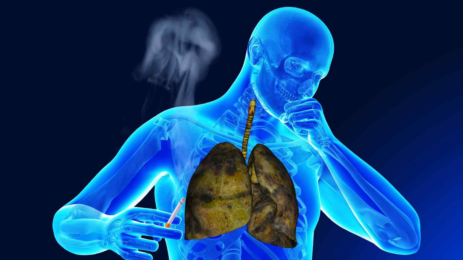 Д-р Данчева: Пушаческата кашлица не съществува