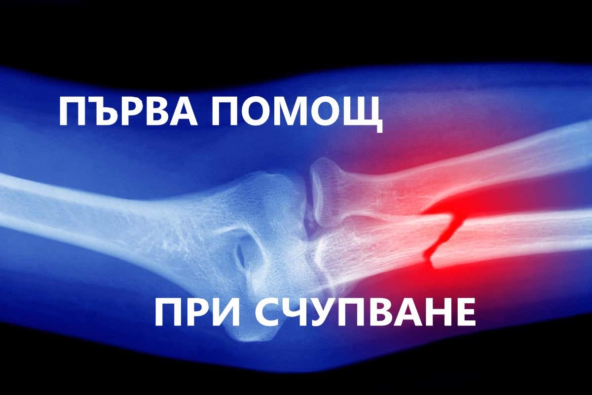 Първа помощ при счупена кост